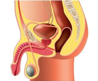Ce trebuie sa stim despre boala Peyronie (curbarea penisului)?