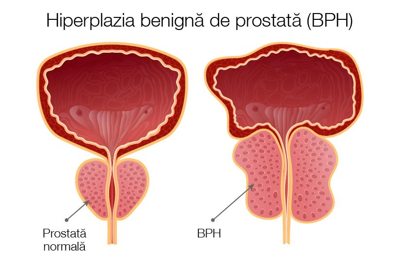 cu o prostată mărită, o erecție)