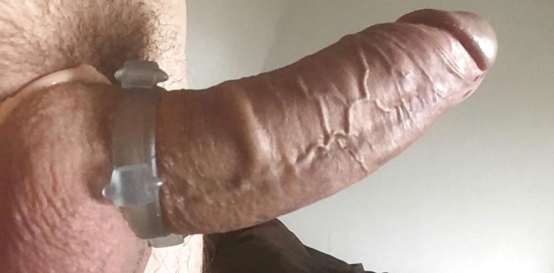 de ce pun inele pe penis se infiltrează pe penis