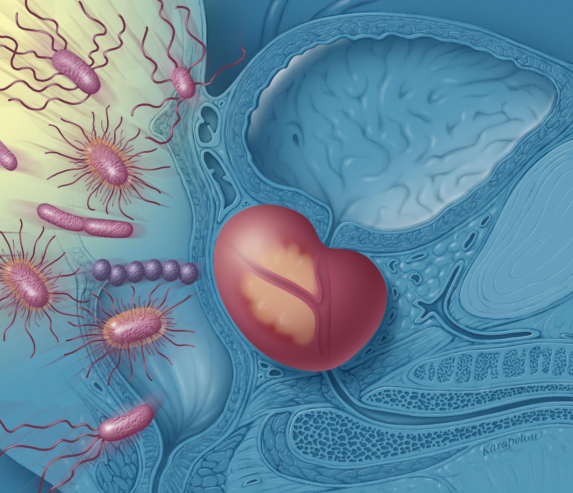 erecție îmbunătățită din masajul prostatei