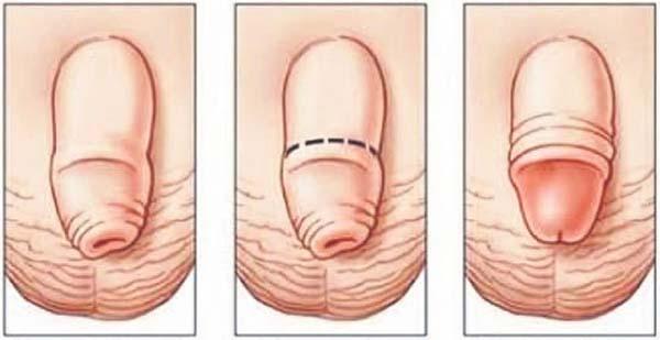 penisul nu este complet expus)