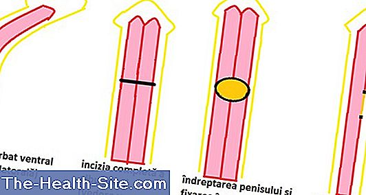 lungimea penisului ceea ce este normal)
