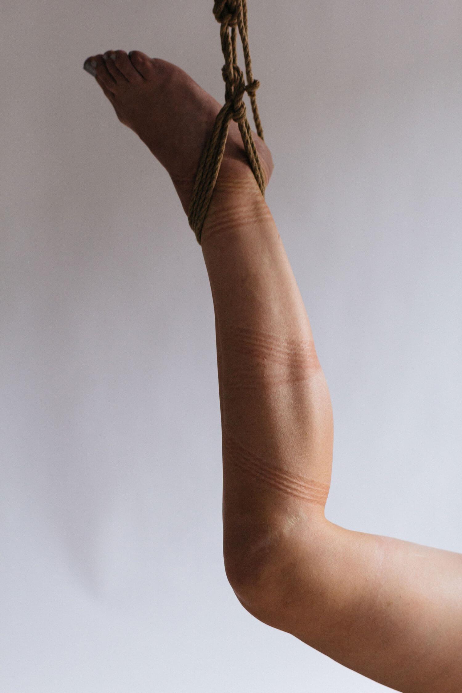 Cum am fost hărțuit de presă după ce mi-am tăiat penisul