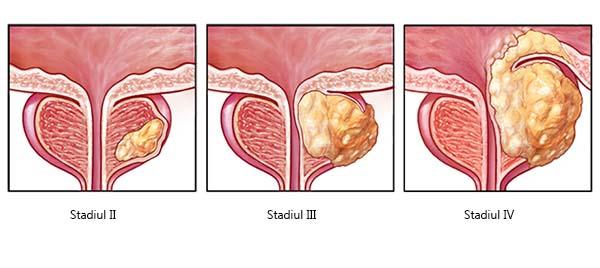 prostata se mareste odata cu erectia
