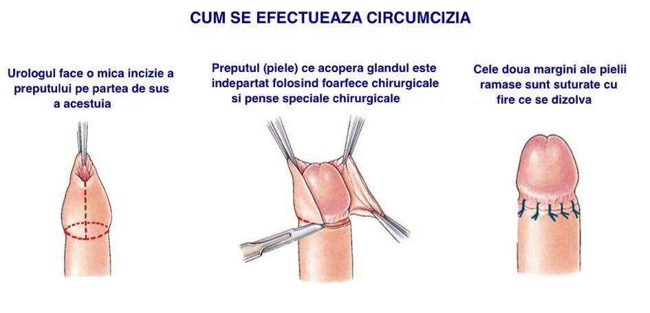 penisului și aplicarea acestuia