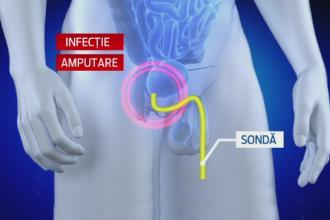 penis de neoprit