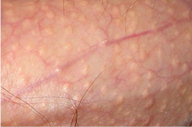 acnee pe penis penisul interferează cu somnul
