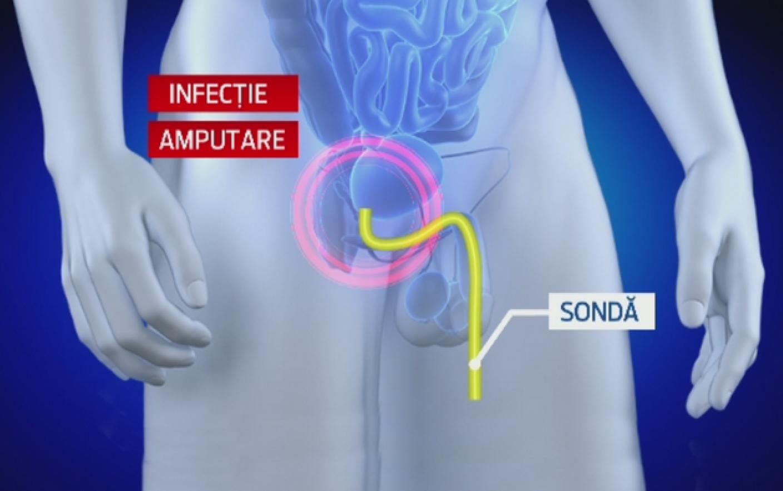 chirurgie de amputare a penisului