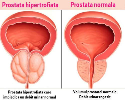 cum se tratează o erecție în prostatita cronică erecție pierdută când se dezbracă