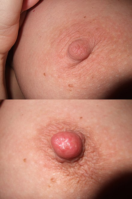 punct de erecție penis