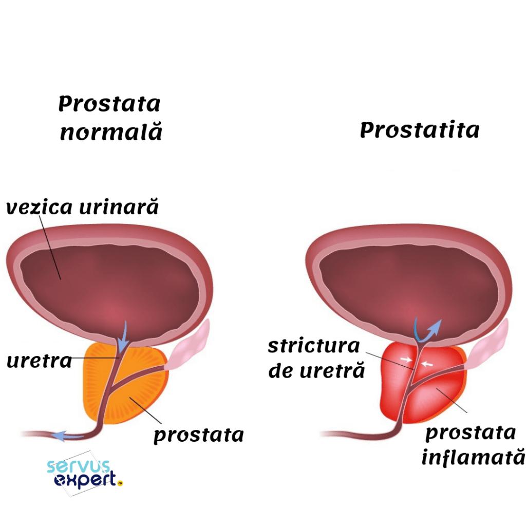 Prostata: cele mai comune boli ale acesteia si tratamentele   MedLife