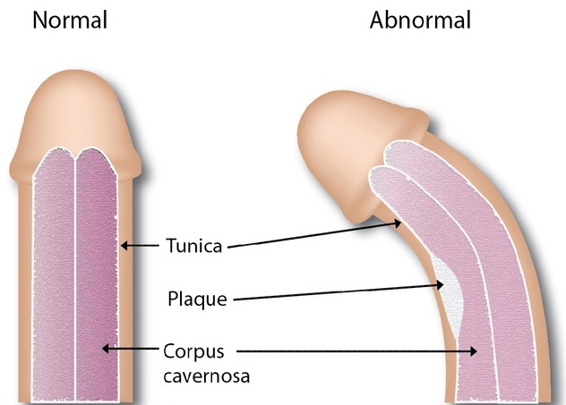 tratamentul bolilor penisului cine să se ocupe de problema penisului