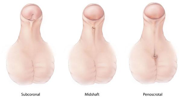 stand de penis mai lung)