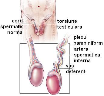 Varicocel pe partea stângă la bărbați - Tromboflebita