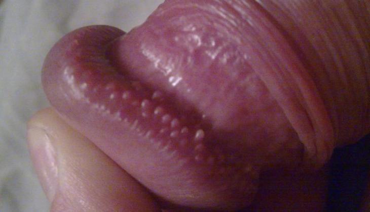 umflă penisul)