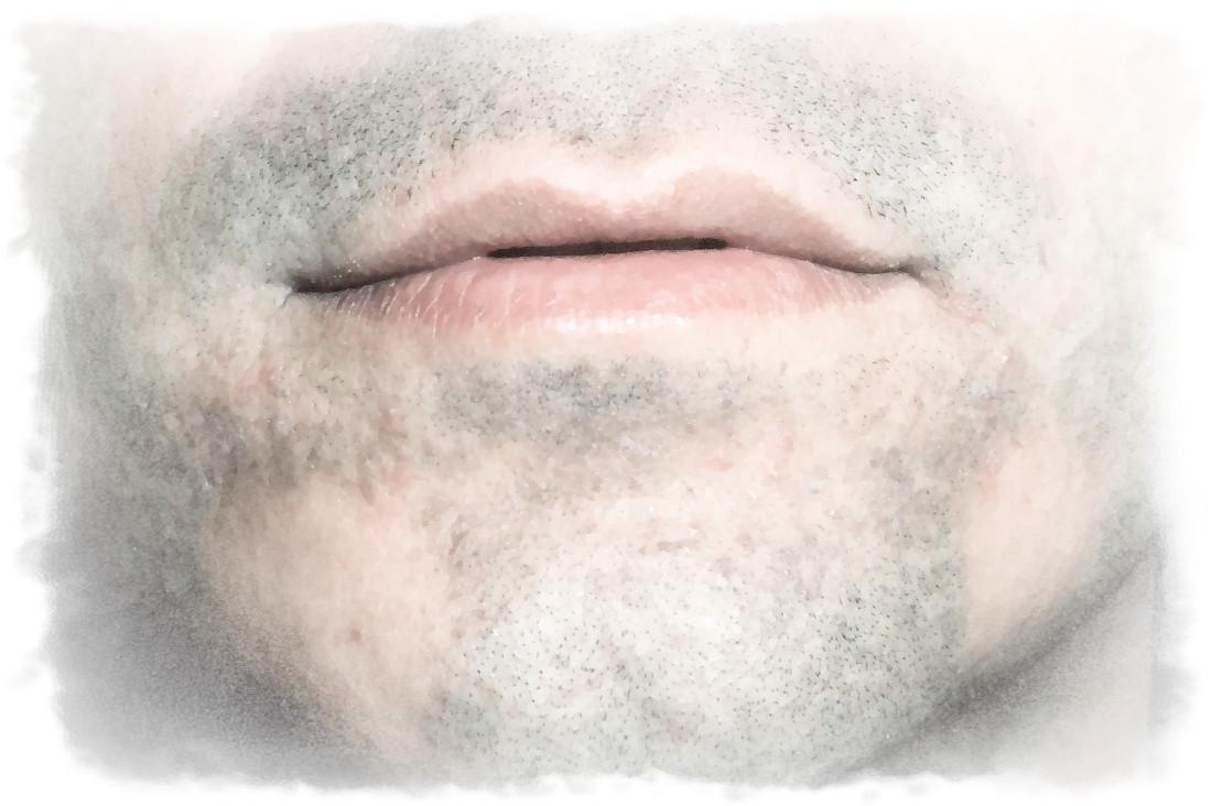 vitiligo simptome