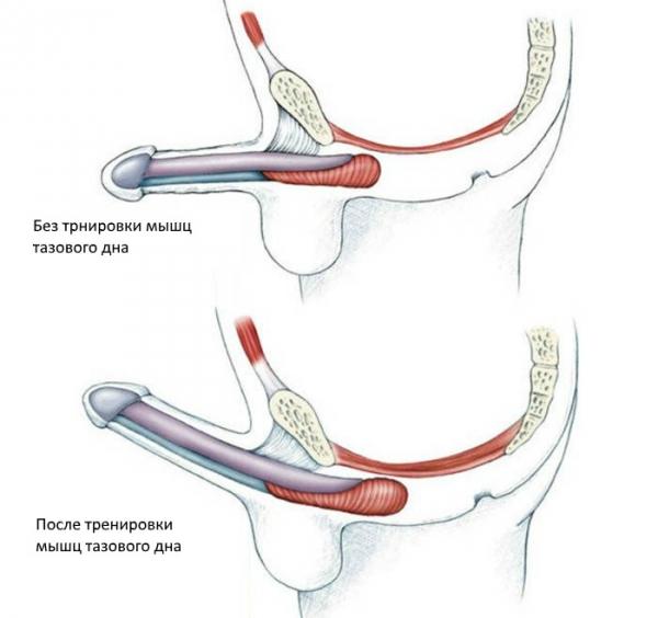 înseamnă refacerea membranei mucoase a penisului)