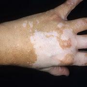 vitiligo de către penis