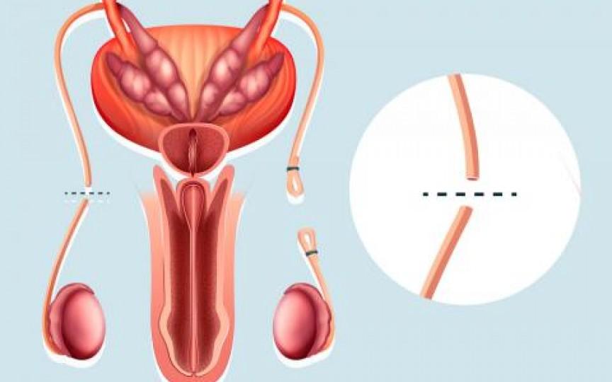 sterilizare și erecție