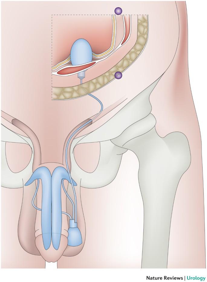 fistula pe penis caz penis