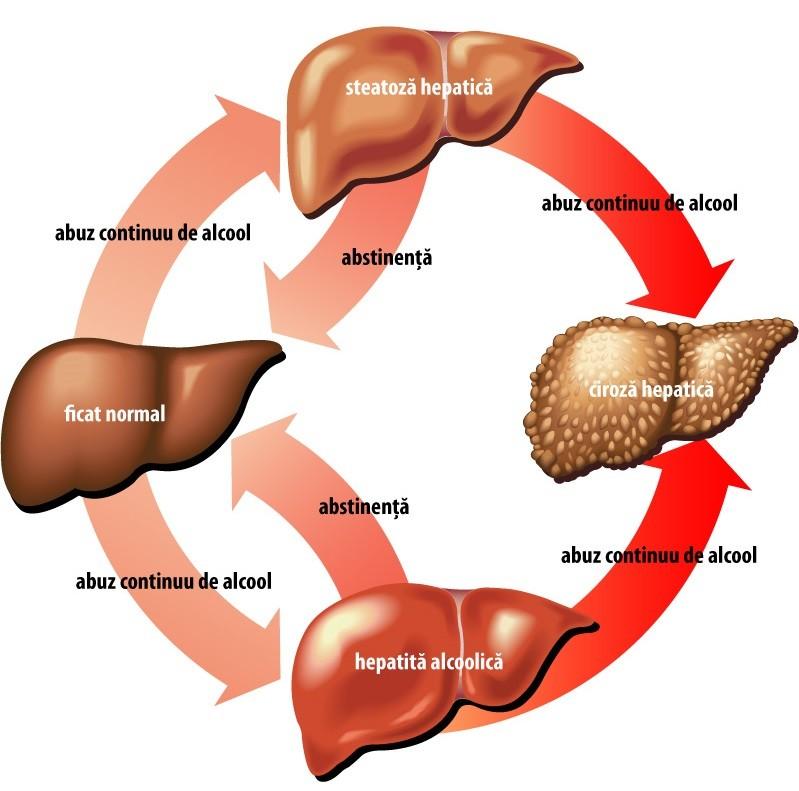 encefalopatie și erecție)