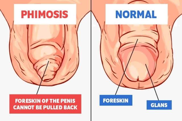 umflat penis)