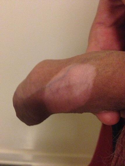 Vitiligo - ce este si cum se trateaza - Sănătate > Medicina generala - Pagina 1 - univegaconstruct.ro