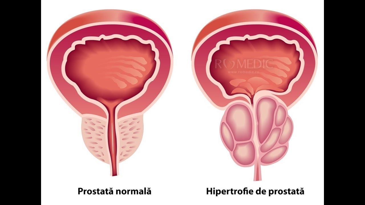 erectie cu prostata marita
