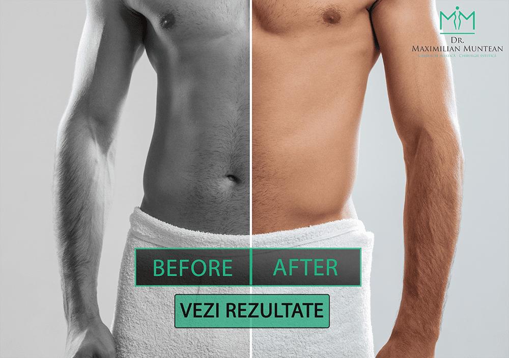 penisuri înainte și după operație