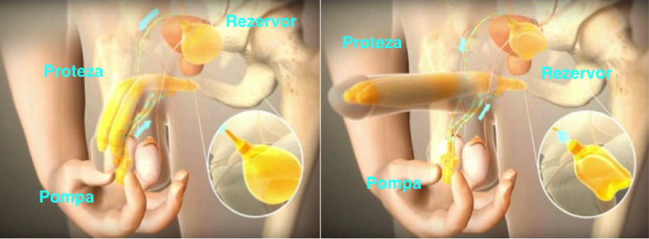 Chirurgia zonei genitale masculine - Clinica Zetta