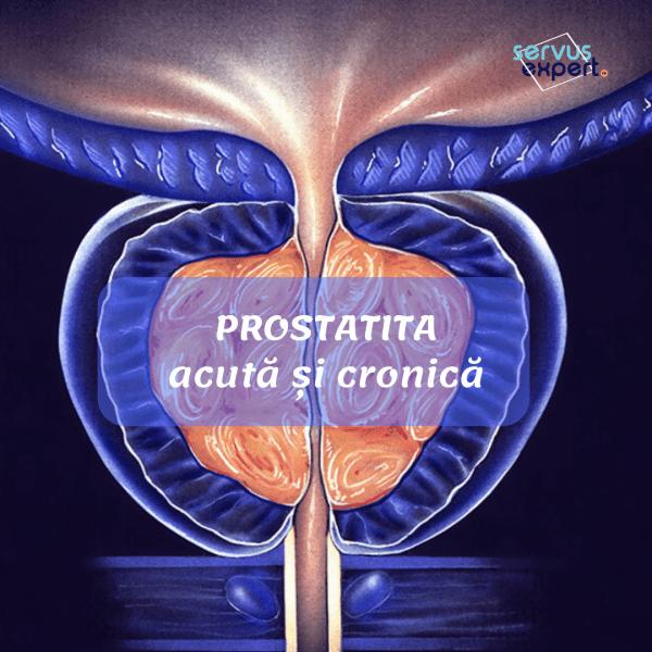 cum se tratează o erecție în prostatita cronică erecție pierdută pentru femei