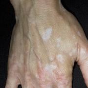 vitiligo de către penis erecțiile de dimineață au dispărut