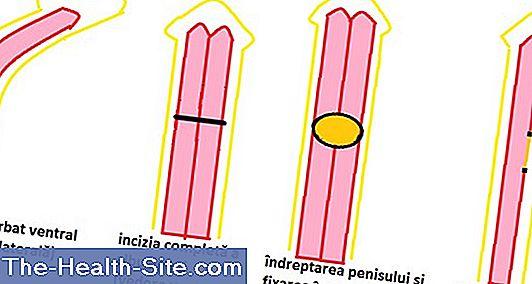 dimensiune normală când este erectă)