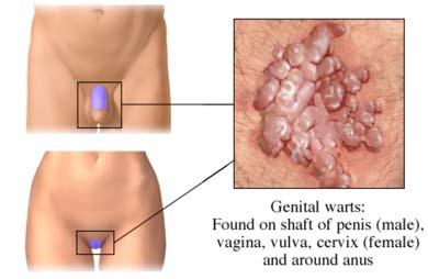 ceva greu a apărut pe penis cum să vă măriți penisul