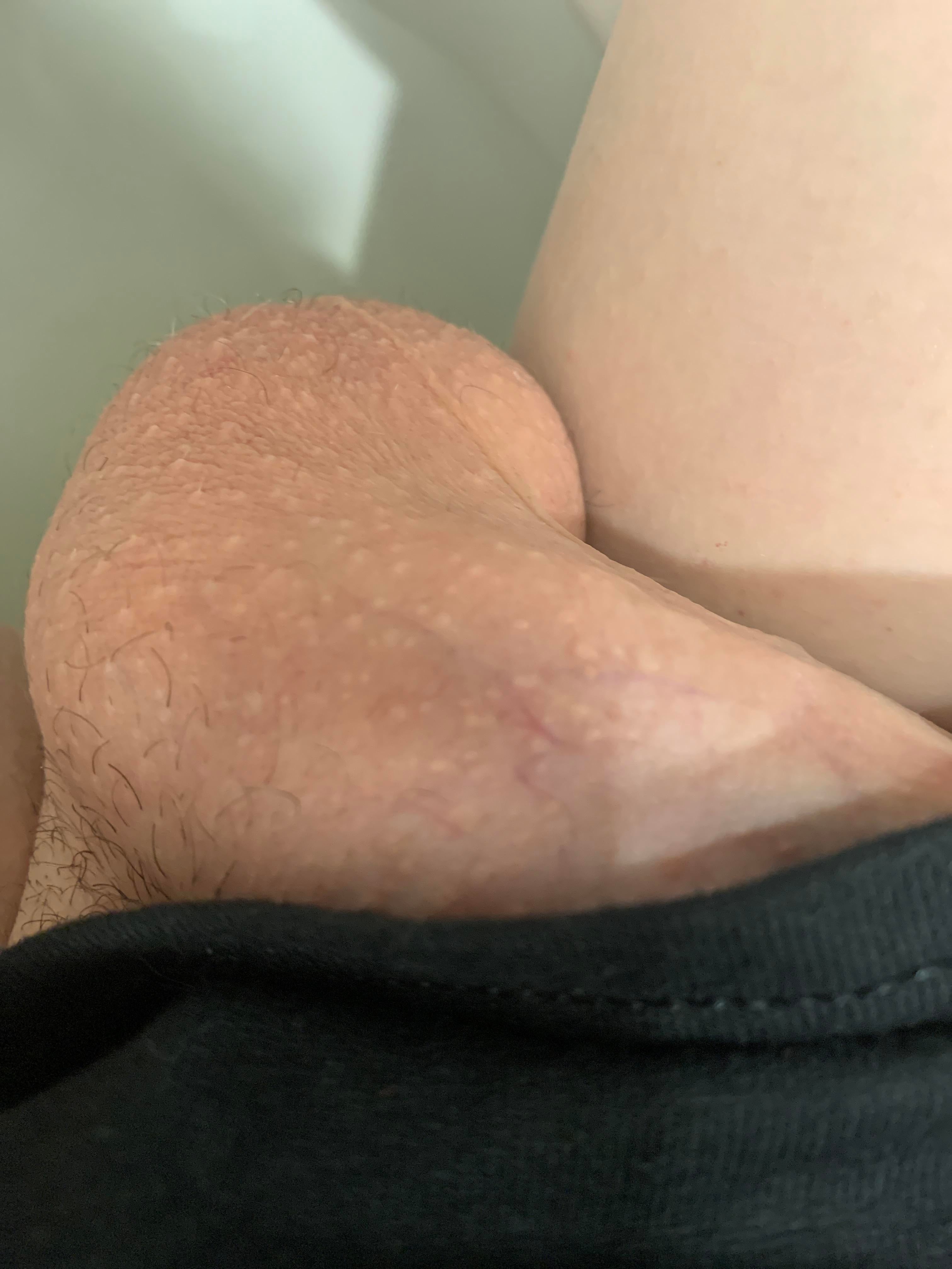 penis normal