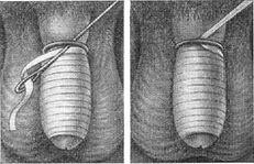 tratarea penisului învinețit a pierdut o erecție pentru o vreme