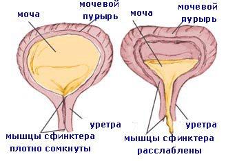 dacă o erecție dispare în timpul actului sexual care ar fi o erecție mai bună