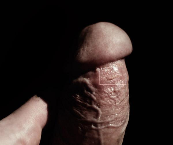 dermatolog penis)