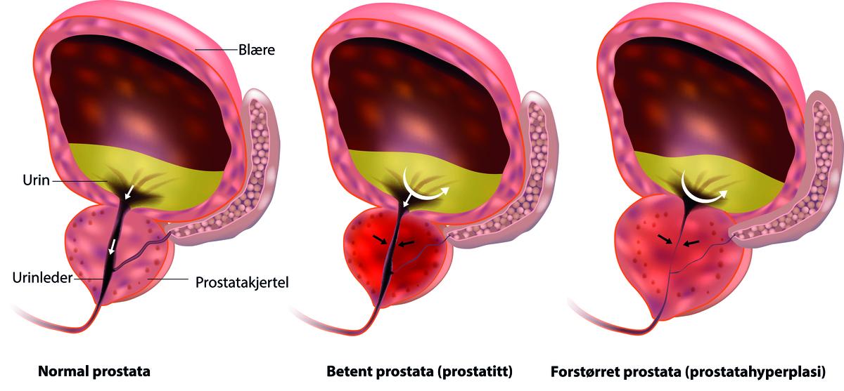 erecții spontane cu prostatită cel mai bun produs de erecție