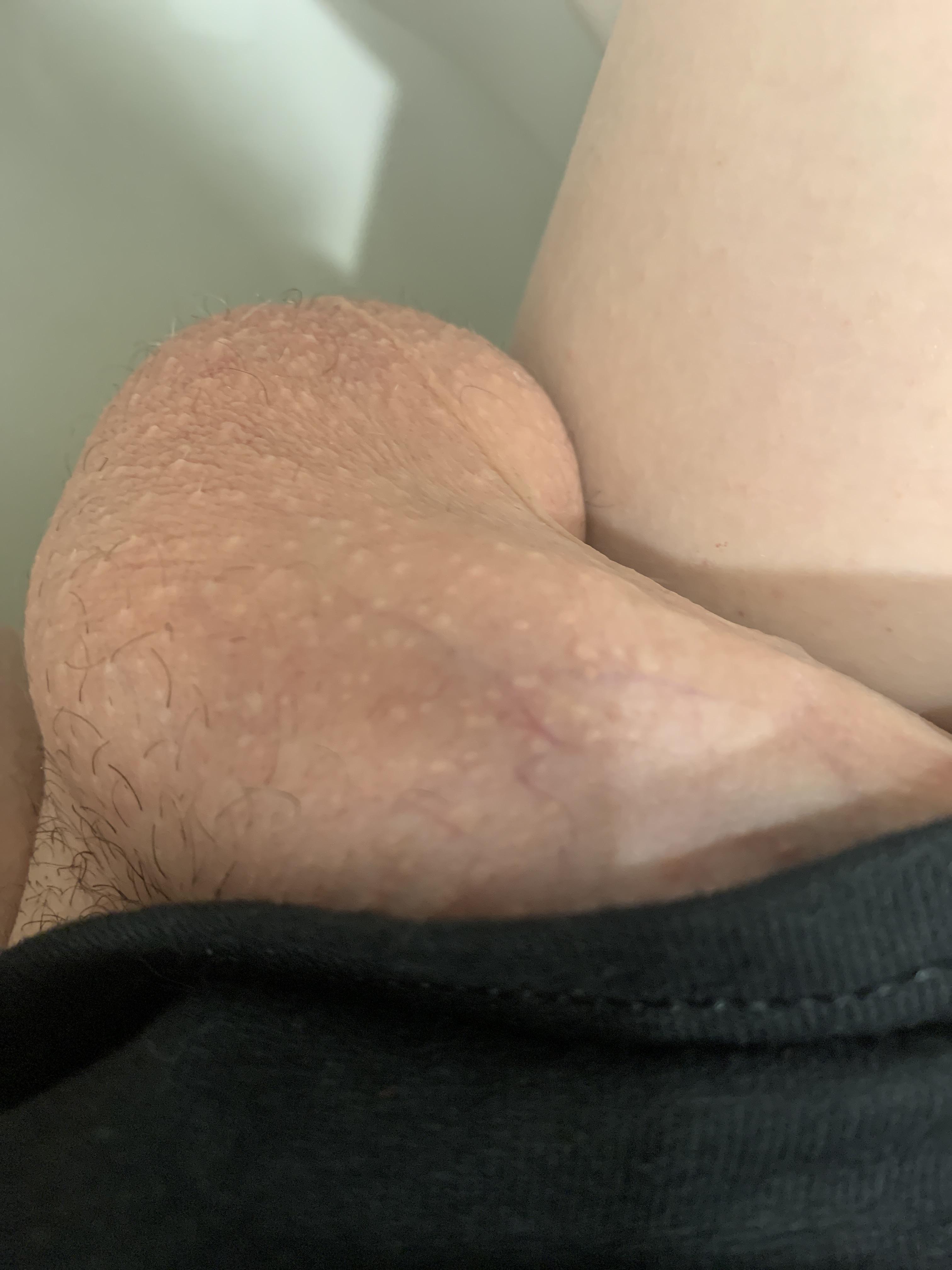 penis normal)