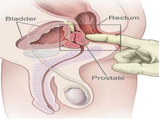 erecție după masajul prostatei