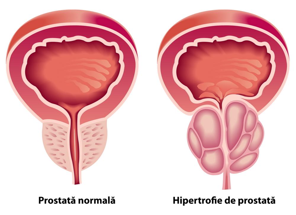 lipsa tratamentului de erecție pentru prostatită