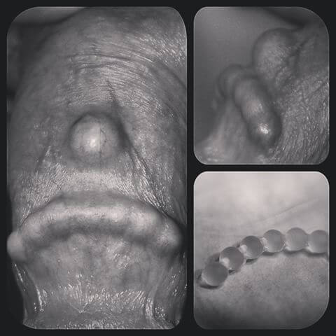 prostatită și slăbirea erecțiilor penisul nu se mărește în timpul unei erecții
