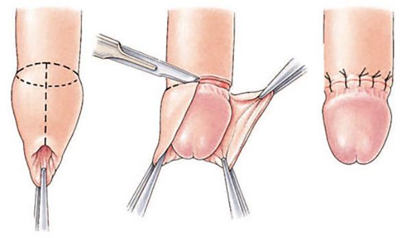 chirurgie cum se taie penisul)