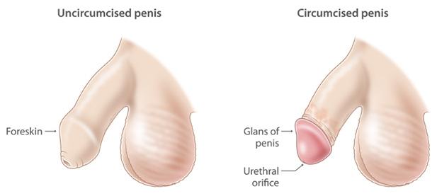 fără erecție după operație ce trebuie făcut